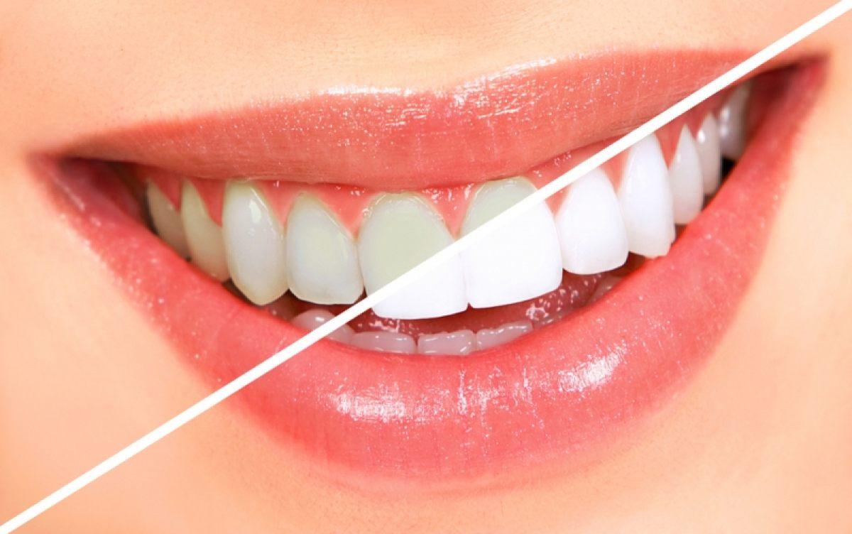 Sapte metode de albire a dintilor la domiciliu