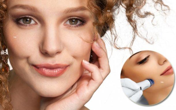 Ce este radiofrecventa faciala?